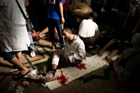 A wounded supporter of Egypt's ousted President Mohammed Morsi lies on the floor of a field hospital in Nasr City, Egypt, July 27, 2013.